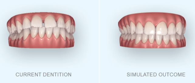 smile simulation