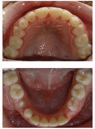 before and after dental photos